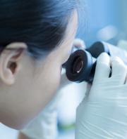 幹細胞のチェック
