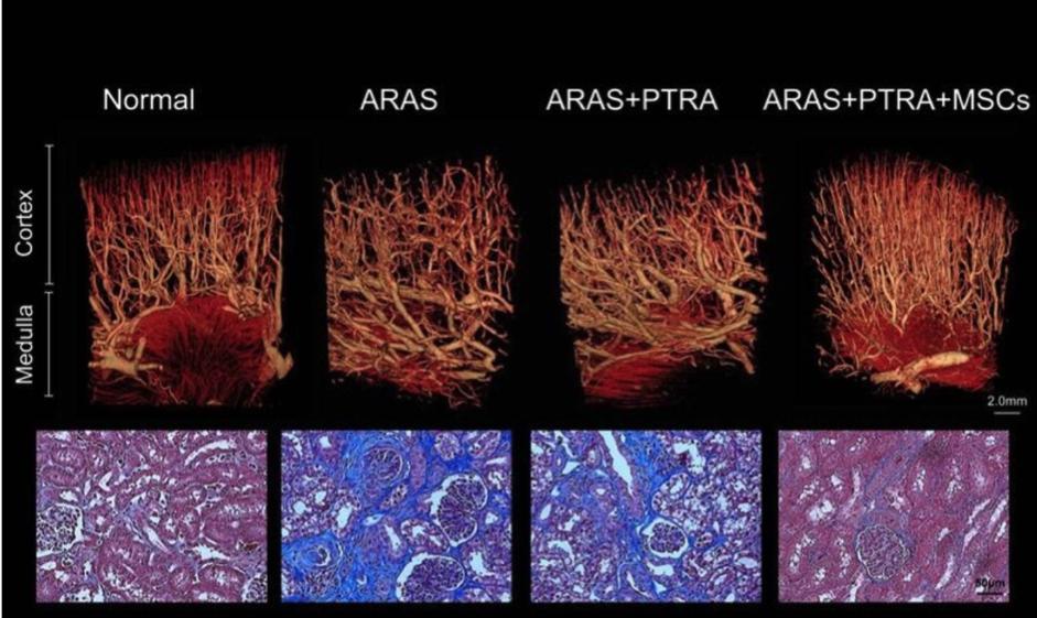 間葉系幹細胞治療